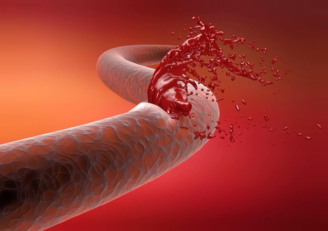 Шунтирование сонной артерии