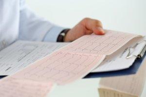 Основным методом диагностики экстрасистолии является ЭКГ
