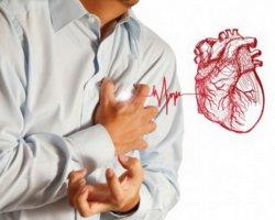 Фибрилляция предсердий может стать причиной инфаркта миокарда!
