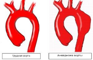 Аневризма аорты может усложниться разрывом с развитием массивного кровотечения