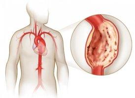 Диффузная аневризма сердца чаще всего встречается при обследовании