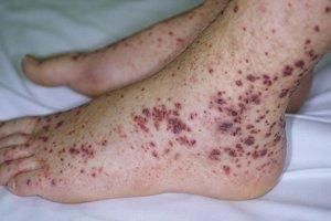 Геморрагический васкулит имеет еще и другое название – аллергическая пурпура