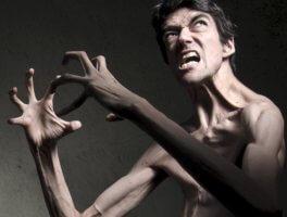 Синдром Марфана – что это такое за диагноз?