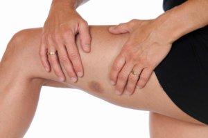 Пятна на ногах, похожие на синяки: возможные причины их появления