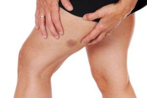 В зависимости от причины появления васкулиты бывают первичными и вторичными