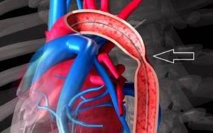 В основе болезни лежит нарушение слияния аортальных дуг в периоде эмбриогенеза