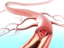Выделяют болезни центральных и периферических сосудов