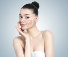 «Звездочки» появляются чаще всего на щеках, лбу, носу и подбородке