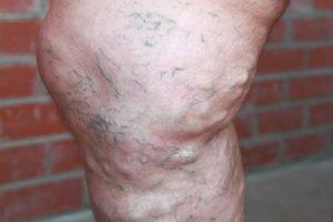 Запущенный варикоз может осложниться экземой и тромбофлебитом