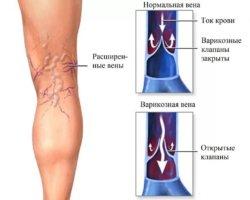 Симптомы варикоза зависят от стадии болезни