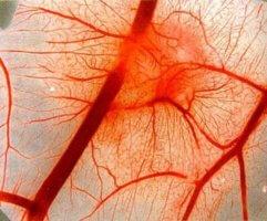 Геморрагический васкулит может иметь острую, затяжную и хроническую форму