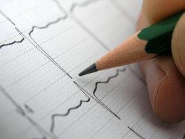 С помощью ЭКГ можно оценить ритм и проводимость сердца