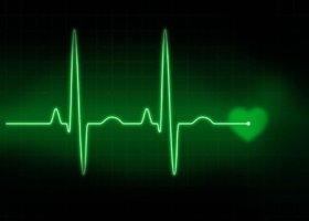 Аритмия – патологическое состояние, при котором происходит нарушение ЧСС