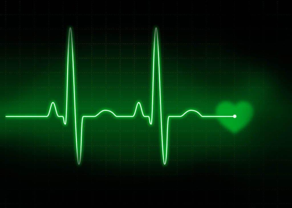 Электростимуляция сердца при мерцательной аритмии