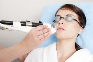 удаление сосудистой сетки на лице