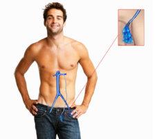 Симптомы и осложнения зависят от стадии варикоцеле