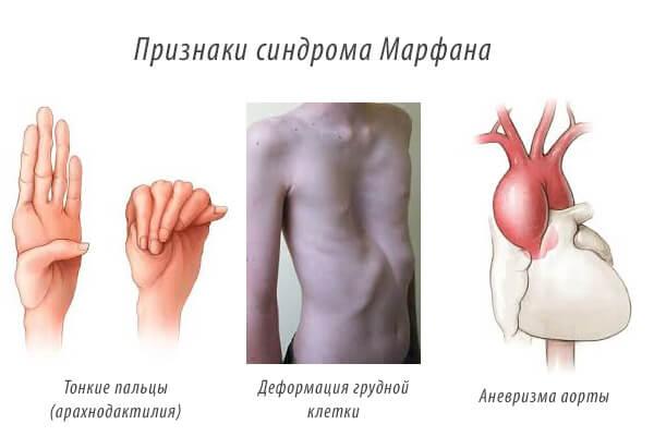 Признаки синдрома