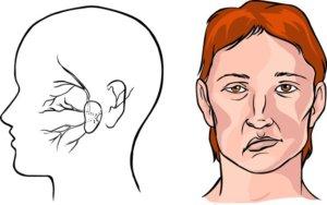 Инсульт сопровождается внезапной потерей сознания и параличами