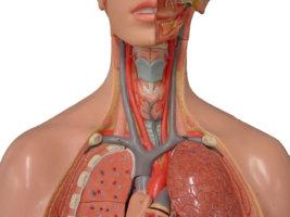 уздг брахиоцефальных артерий