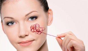 Удаление сосудистой сетки на лице: у косметолога и дома