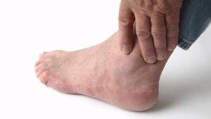 Что делать если опухают ноги в районе щиколотки – причины и лечение