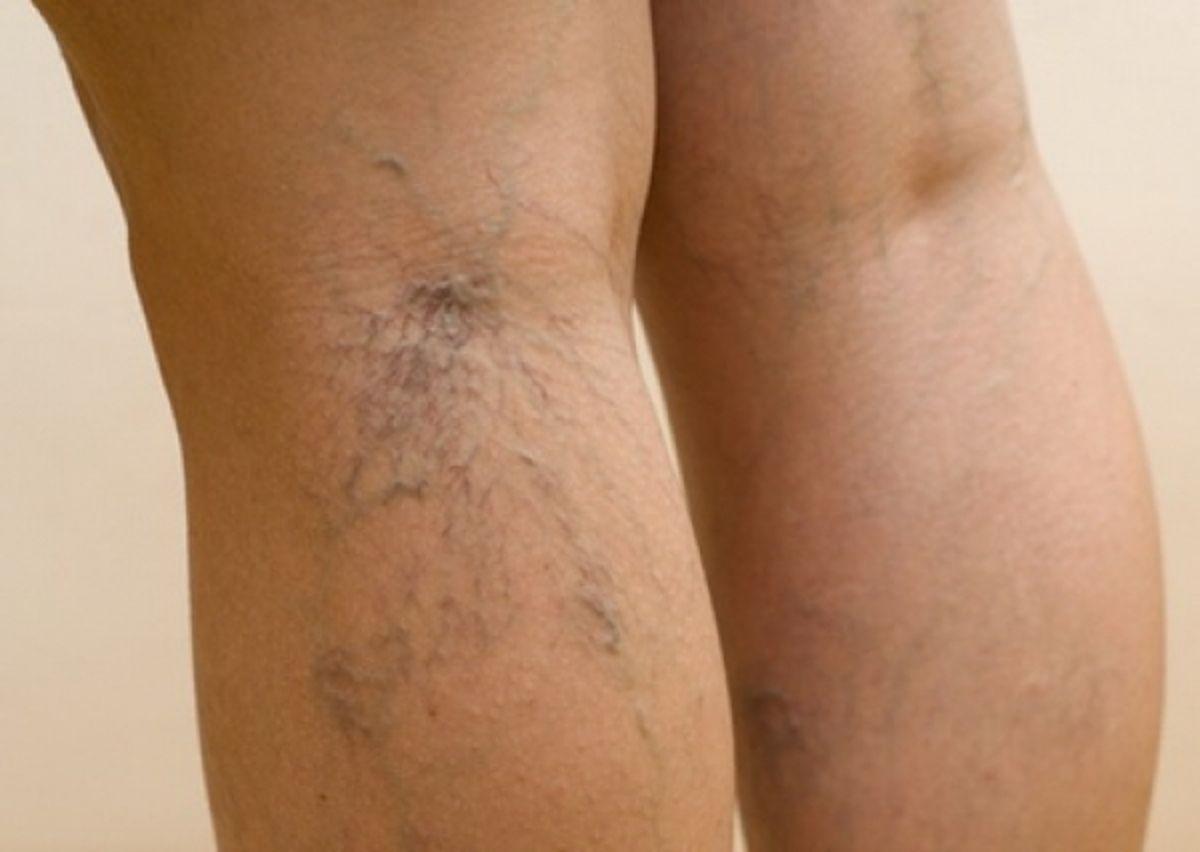 Флебит – это воспаление вен: симптомы возникновения и методы лечения