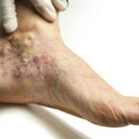 Запущенный тромбоз может стать причиной инвалидности, и даже смерти