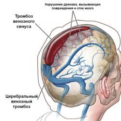 Тромбоз венозных синусов головного мозга — что это за диагноз?
