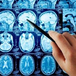 Основные признаки и последствия ишемического инсульта, код по МКБ-10