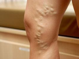 Тромбофлебит может поражать глубокие и поверхностные вены