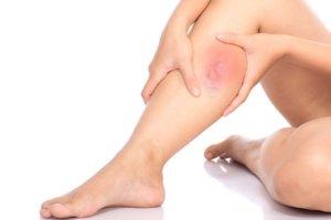 Воспаление вен может протекать в острой и хронической форме