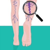 Флебит может спровоцировать развитие тромбофлебита