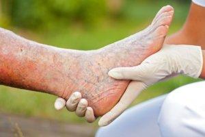 Чаще всего тромбофлебит возникает как осложнение варикоза