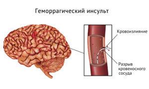 Причиной геморрагического инсульта чаще всего является сильно высокое давление