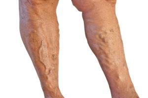 Тромбоз – это закупорка сосудов, которая затрудняет ток крови