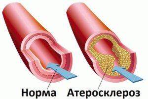 Атеросклероз – основная причина тромбоза кишечника