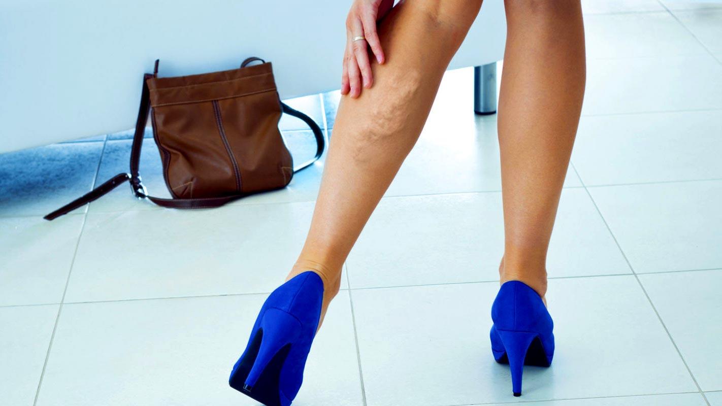 Первые признаки и основные симптомы тромбофлебита ног