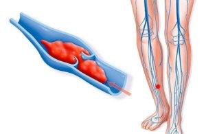 Тромбоз может стать причиной хронической венозной недостаточности