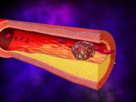 На фоне тромбофлебита могут появиться трофические язвы