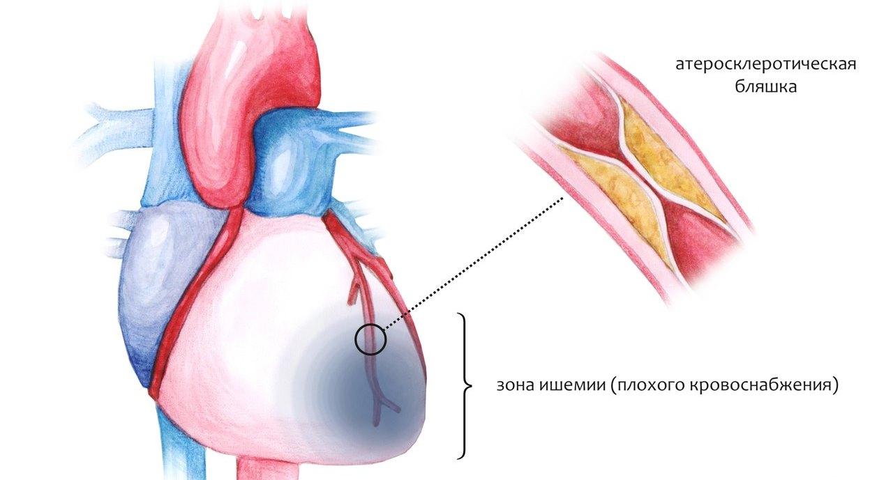 Ишемия сердца: лечение народными средствами, эффективные рецепты