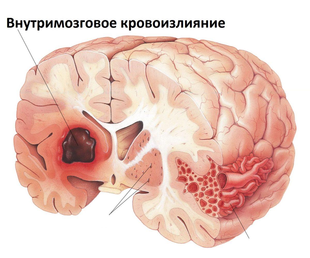 от чего бывает отек мозга виды гладильной
