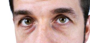 Какая причина вызывает появление синяков под глазами у мужчин?