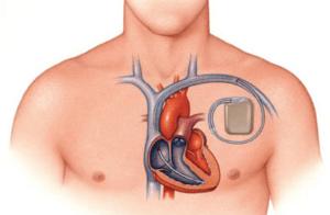Кардиостимуляторы устанавливают чтобы, помощь контролировать сердцебиение