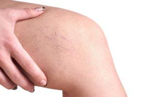 Как начинается варикоз на ногах, меры по недопущению развития болезни