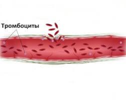 тромбоцитопатия что это такое