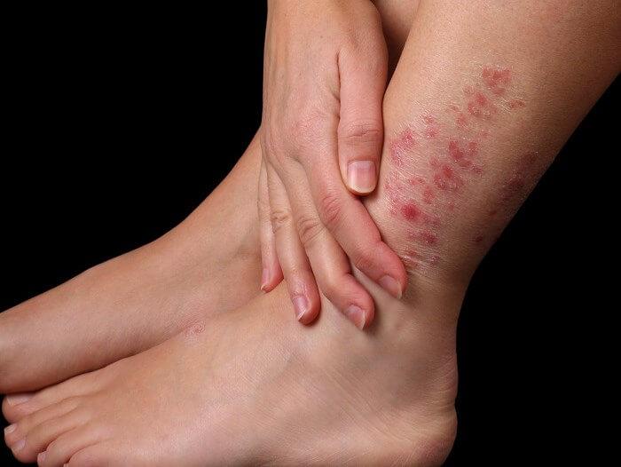 О чем свидетельствуют красные твердые пятна на ногах?