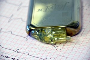 Кардиостимуляторы показаны при брадикардии, мерцании предсердий и других нарушения сердечного ритма