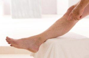 Варикоз – это вздутие периферических вен под кожей