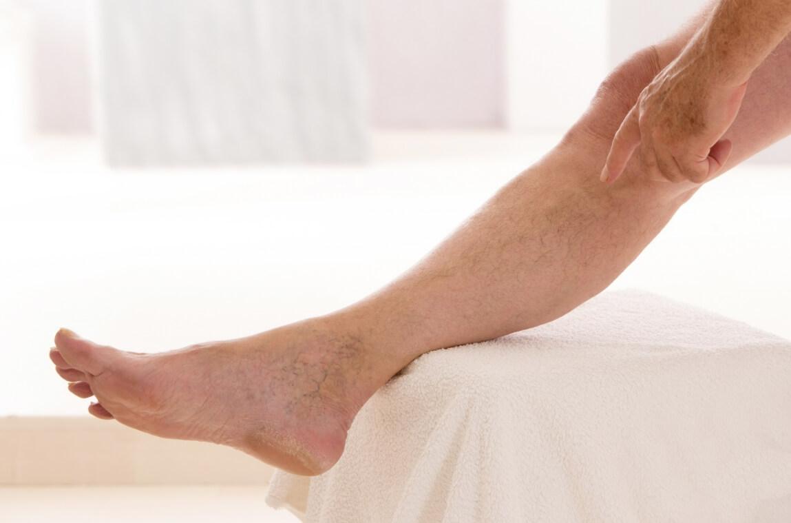 Лечение варикоза вен на ногах лазером: суть операции и отзывы о ней
