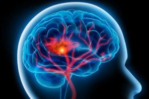 При кровоизлиянии в головном мозге принимать препарат абсолютно противопоказано!